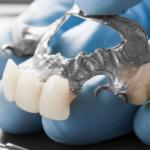 Dental Bridge Can Keep Your Teeth Healthier