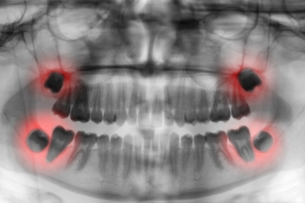 Wisdom Teeth Extraction Surgery Expectations