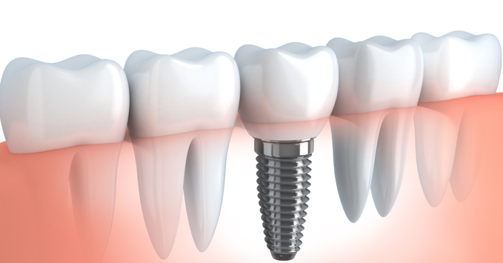 Facts About Dental Implant Recovery Process