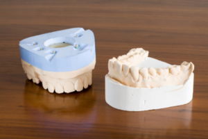 Four Kinds of Teeth in Your Mouth