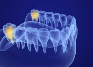 Do Wisdom Teeth Have to be Removed?